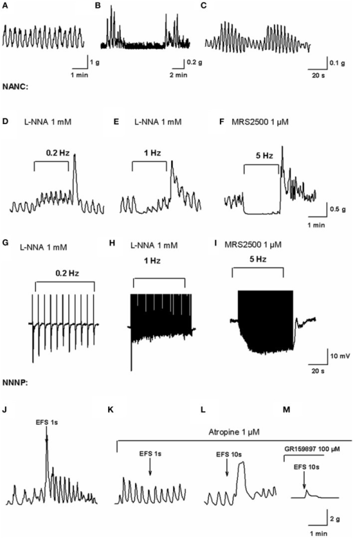 In vitromotility patterns and enteric neurotransmission in the human colon. Mechanical recording of high frequency (HF) contractions of a constant amplitude probably associated to slow wave activity (A), low-frequency (LF) contractions superimposed to HF contractions (B) and wax and wane of HF contractions amplitude (C) obtained from the experiments performed in our lab (Mane et al., 2014a). Mechanical recording of EFS under NANC conditions on L-NNA 1 mM incubated tissue at a frequency of 0.2 Hz (D) and 1 Hz (E) and MRS2500 1 μM incubated tissue at a frequency of 5 Hz (F) (Mane et al., 2014a). In L-NNA incubated tissue, purinergic neurotransmission is only able to cause phasic relaxations while nitrergic neurotransmission at 5 Hz completely inhibits spontaneous contractions. Electrophysiological recording of electrical field stimulation on L-NNA incubated tissue at a frequency of 0.2 Hz (G) and 1 Hz (H) and MRS2500 incubated tissue at a frequency of 5 Hz (I) (Mane et al., 2014a). Notice how purinergic fast IJP amplitude is reduced with high frequencies of EFS after the first pulse while the nitrergic response increases due to summation of slow IJP. Mechanical recording of EFS in NNNP conditions at 50 Hz, 50 V, 0.4 ms for 1 s (J) eliciting an atropine-sensitive (K) contraction. Mechanical recording of EFS in NNNP conditions at 50 Hz, 50 V, 0.4 ms for 10 s (L) eliciting an antiNK2-sensitive (M) contraction (Martinez-Cutillas et al., 2015).