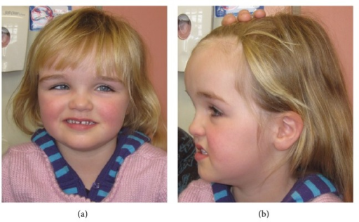 (a) Image of Patient 2. (b) Patient 2 exhibits frontal bossing and macrocephaly.