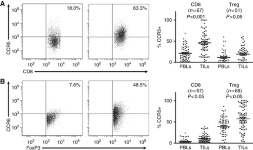 CCR5 and CCR6 show differential expressions on CD8+ and regulatory T lymphocytes in PBLs and matched TILS. Paired PBL and TIL samples were stained with antibodies specific for CD3, CD4, CD8, FoxP3, CCR4 and CCR6. The CD8+ T lymphocytes (CD3+CD8+) and Treg lymphocytes (CD3+CD4+FoxP3+) were separately gated, and then the expressions of CCR5 and CCR6 were determined with multicolour flow cytometry. (A) Representative plots of CCR5 staining on CD8+ T lymphocytes in matched PBLs and TILs (left panel). Paired analysis of CCR5 expressions on CD8+ T and Treg lymphocytes in paired PBLs and TILs (right panel). (B) Representative plots of CCR6 staining on Treg lymphocytes in matched PBLs and TILs (left panel). Paired analysis of CCR6 expressions on CD8+ T and Treg lymphocytes in paired PBLs and TILs (right panel).