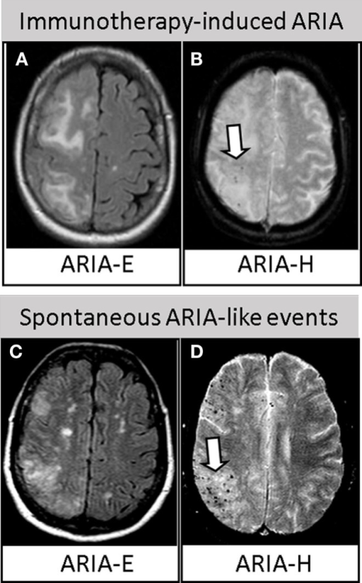 "Similarities between immunotherapy-induced ARIA and spontaneous ARIA-like events in CAA-ri. Upper row. Axial brain MRI revealing ARIA-E (A) and ARIA-H [(B), arrow] in one AD patient treated with bapineuzumab. Reproduced with permission from Ref. (3). Lower row. Axial brain MRI revealing spontaneous ARIA-E (C) and ARIA-H [(D), arrow] occurring in one CAA-ri patient from the ""The inflammatory Cerebral Amyloid Angiopathy and Alzheimer's disease βiomarkers (iCAβ) International Network (20, 50)."" Images (A,C) represent FLAIR-MRI sequences; (B,D) represent T2*-GRE sequences."