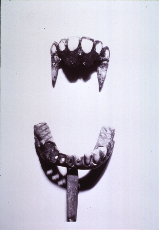 <p>Mold for lower teeth; partial replacement for upper front teeth.</p>