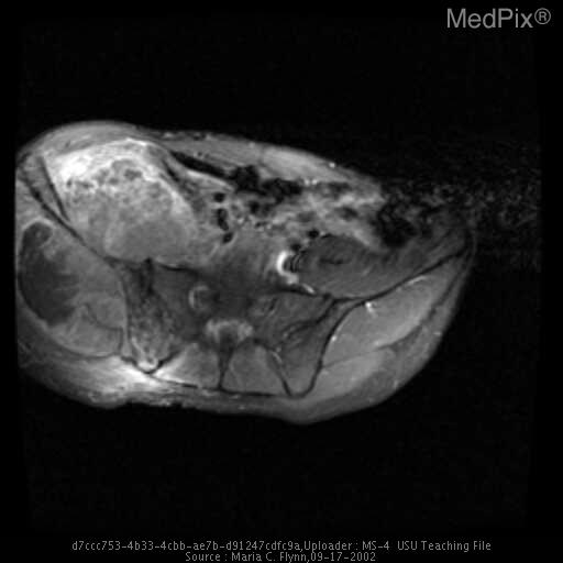 Axial and coronal contrast-enhanced T1-weighted MR images  show heterogeneous enhancement of the mass originating from the iliac wing both anteriorly and posteriorly with a large nonenhancing region posterior to the iliac wing consistent with necrosis.