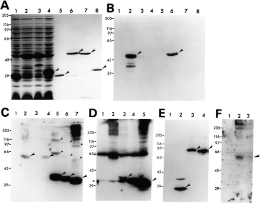 Immunoblot analysis of PS-2 proteins. (A and  B) PS-2 NH2-terminal, loop,  and COOH-terminal sequences were expressed as  GST fusion proteins and separated by SDS-PAGE on  8.5% polyacrylamide gels.  The separated proteins were  either stained with Coomassie blue (A) or transferred onto nitrocellulose filters and immunoblotted  with the PS-2 NH2-terminal  antibody (B). Lanes 1–4 are  whole cell lysates of bacteria  induced for expression of  GST fusion proteins by addition of IPTG, and lanes 5–8  are the corresponding purified GST fusion proteins.  The GST fusion proteins that  were expressed are as follows: Lanes 1 and 5, GST  alone; lanes 2 and 6, GST– NH2-terminal fusion protein;  lanes 3 and 7, GST–loop fusion protein; and lanes 4 and  8, GST–COOH-terminal fusion protein. The arrowheads  indicate the position of full-length GST fusion proteins. (C–F) Protein lysates of transfected HeLa cells separated by SDS-PAGE on  8.5% gels and immunoblotted with antibodies that recognize the transfected proteins. (C) Immunoblot with the anti–PS-2–specific antibody. Lanes 1–7 are lysates of cells transfected with the following constructs: Lanes 1 and 3, mock-transfected cells; lane 2, pPS-2; lane  4, pPS-2+Myc; lane 5, pPS-2(268aa)+Myc; lane 6, pPS-2(222aa)+Myc; and lane 7, pPS-2(166aa)+Myc. (D) Immunoblot of corresponding lysates shown in C with the anti-myc antibody. Lysates in lanes 1–5 in D correspond to lysates in lanes 3–7 in C. (E) Immunoblot  with the anti–GFP-specific antibody. Lanes 1–4 are protein lysates of cells transfected with the following constructs: Lane 1, mock-transfected cells (control); lane 2, pGFP; lane 3, pGFP–PS-2; and lane 4, pGFP–PS-2(N141I). (F) Immunoblot of nonfusion PS-2 proteins with the NH2-terminal PS-2 antibody. Lanes 1–3 are 100 μg of protein lysates of cells transfected with equivalent amounts of the  following nonfusion PS-2 constructs: Lane 1, mock-transfected; lane 2, pPS-2 (wild-type); and lane 3, pPS-2(Asn141Ile) mutant. The positions of protein molecular weight markers are indicated. Full-length PS-2 containing polypeptide bands seen only in transfected cell  lysates are marked with large arrowheads. The small arrowheads indicate the positions of larger PS-2 complexes.