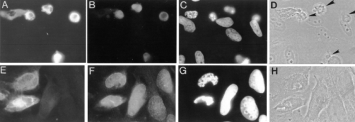 Correlation of apoptotic events in HeLa cells expressing PS-2. HeLa cells were transfected with the pPS-2(166aa)+Myc construct and were examined for apoptotic or morphological changes 48 h after transfection. The rows of panels are the same cells stained  for PS-2 protein (A and E), TUNEL labeling (B), or lamin staining (F); DAPI staining of DNA (C and D) and phase contrast images (D  and H). Cells that labeled positive for TUNEL appeared rounded-up and shrunken by phase contrast microscopy (arrowheads).