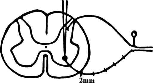 Schematic diagram  showing the microdissection  of L5 ventral roots and the  microinjection of [35S]methionine into the ventral  horn of the mouse spinal  cord in the experimental paradigm used here to analyze  axonal transport.