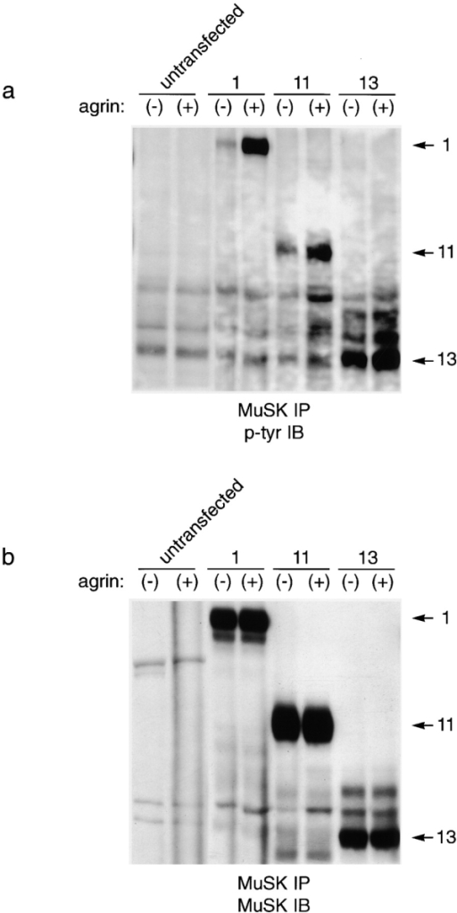 Tyrosine phosphorylation of MuSK ectodomain mutants. MuSK−/− myotubes were transfected with the indicated constructs (Fig. 2 a), treated with agrin for 10 min (+) or left untreated (−), and then subjected to immunoprecipitation with anti-MuSK. Immunoblots were probed with antiphosphotyrosine (a), stripped, and reprobed with anti-MuSK (b). (lanes 1 and 2) Untransfected myoblasts; (lanes 3 and 4) myoblasts transfected with wild-type MuSK (construct 1); (lanes 5 and 6) myoblasts transfected with construct 11; and (lanes 7 and 8) myoblasts transfected with construct 13. Wild-type MuSK and construct 11, both of which mediate agrin-induced AChR clustering, also show agrin-dependent tyrosine phosphorylation. Mutant 13, which does not mediate agrin-dependent tyrosine phosphorylation, shows a high level of agrin-independent phosphorylation but only slight agrin-dependent phosphorylation.