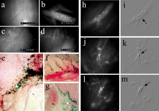 We tested the adhesion of the Sca-1+/CD34−/L-selectin+ positive cells (HMDSCs) to muscle blood vessels by intravital microscopy. Boluses of 5 × 105 fluorescently (BCECF) labeled cells were injected into the quadriceps muscle, and their adhesion to the pectoral muscle vessels was recorded. To improve contrast between the intra- and extravascular compartments, the animals were injected intravenously with a low dose of FITC–dextran. The time course study, i.e., before (a), during (b), and after (c and d) i.m. injections, indicates a significant migration of the HMDSCs within the injected muscle. β-Gal staining of ROSA26-derived HMDSCs showed the presence of injected cells along the injection site (e), near myofibers, bleeding vessels (f), and arterioles (g). Moreover, after i.m. injections in quadriceps, the HMDSCs were able to migrate to the blood stream and then adhered to the endothelial lining of several distant muscles, such as pectoralis (h–m). Arrows in i, k, and m indicate migrated BCECF-labeled cells (bright dots) in the perivascular space of a muscle venule 1 h after injection.