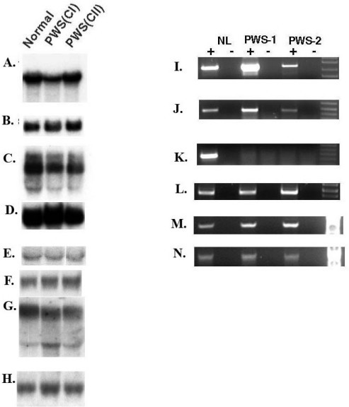 "Imprinting analysis of CYFIP1, NIPA2, GOLGA8E, and WHDC1L1. Northern blot analysis of CYFIP1 and NIPA2 in PWS class I and class II deletion patients using cultured lymphoblasts. The expression of CYFIP1(A)and NIPA2 (C) was comparable in the normal control and class II (CII) patient but lower in the class I (CI) patient which is consistent with haplodeficiency of CYFIPI in class I patients suggesting these two genes are not subject to imprinting. The expression of WHDC1L1 in (E), and GOLGA8E in (G) is also comparable to the normal control but the interpretation for WHDC1L1 and GOLGA8E related to imprinting is complicated by the presence of many highly similar copies in the 15q region (see text for detailed discussion). The results using a control GAPDH probe are shown in (B), (D), (F), and (H). RT-PCR expression analysis of the brain tissues from PWS patients is shown for CYFIP1 in (I), for NIPA2 in (J), for WHDC1L1 in (M), and for GOLGA8E in (N). Both transcripts were detectable in both patients but appear to be lower in PWS-2. The absence of SNRPN expression in both PWS cases is confirmed in (K) and (L) is a GADPH control for RNA input. The ""+"" indicates a PCR reaction carried out with reverse transcriptase and ""-"" is without reverse transciptase. The molecular defect of PWS-2 is most consistent with maternal UPD of chromosome 15 or a rare possibility of an imprinting mutation because of the maternal methylation pattern at the SNRPN CpG island, the absence of expression of SNRPN, and the failure to detect a deletion by array CGH (data not shown). This data is also consistent with a report by others [66]."