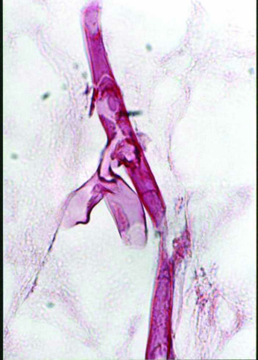 Broad, aseptate and thin walled fungal hyphae having irregular, non-parallel contours, with right angle branching indicative of mucormycosis (PAS × 1000).
