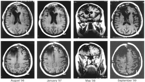 MR study of a female patient (47 years old; No. 16) who had surgery for glioblastoma in April 1996: set of images starting from the baseline evaluation to the last control (September 1999): no evidence of relapse. The patient is scheduled for a new MR in summer 2001.