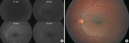Fluorescein angiography 1day after intra-arterial thrombolysis in case 2 (A). The retinal perfusion restored to normal and arteriovenous transit time is 12 sec. Fundus photography 2 weeks after thrombolysis (B). There is no more retinal edema suggesting previous ischemia. The vision improved to 20/25.