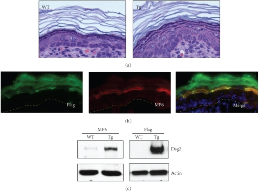 Suprabasal expression of Dsg2-Flag in newborn Inv-Dsg2 transgenic mice. (a) Histology showing slight epidermal hyperplasia in a newborn Inv-Dsg2 Tg overexpressing Dsg2 in the superficial epidermis under the involucrin promoter, but not in WT mice. (b) Immunostaining of newborn Tg skin with Flag (green) and Dsg2-specific MP6 (red) antibodies showing expression of Dsg2-Flag in the differentiated cell layers of the transgenic epidermis. (c) Immunoblot of WT and Tg skin with MP6 and Flag antibodies, showing Dsg2-Flag in the Tg but not WT skin. Actin was used for equal loading.