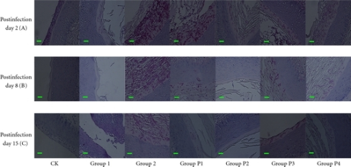 Microscopic observation of the prophylactic efficacy of essential oil versus FCZ against vaginal candidiasis in BALB/c mice on days 2, 8, and 15 after-infection (periodic acid-Schiff staining, 400x). CK: neither infected nor treated animals. Group 1: infected, untreated but not immunosuppressed animals. Group 2: immunosuppressed and inoculated intravaginally with C. albicans 09-1555, and animals that received excipient. Group P1: treated groups: immunosuppressed, infected animals that received FCZ (20 μL at 100 μg/mL). Groups P2, P3, P4: treated groups: immunosuppressed, infected animals that received essential oils (20 μL at 2, 1, and 0.0625% v/v).The bar is 10 μm.
