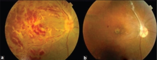 (a) Right eye (2007): Frosted branch angiitis with retinal hemorrhages. (b) Present fundus picture (2009) showing superior tractional retinal detachment and atrophic macular scar, representing sequelae of old inflammation