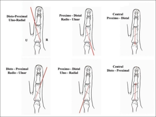 Short oblique fracture of the proximal phalanx of the i | Open-i