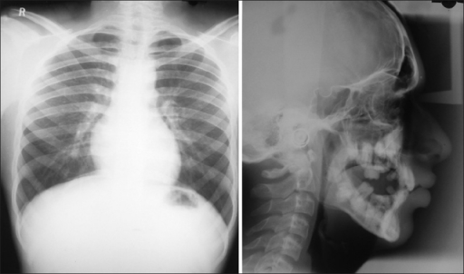 Skull and chest xrays which do not reveal any obvious deformities