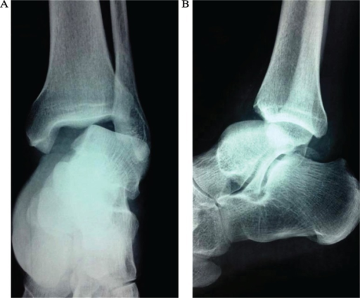 Radiographic ankle views at the initial presentation showing the anterior-lateral dislocation of the ankle (A, B).