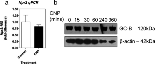 CNP fails to alter expression of Npr2 mRNA or GC-B protein in GH3 somatolactotrope cells. a GH3 cells were stimulated with 0 or 100 nM CNP for 24 h prior to extraction of total RNA, cDNA synthesis, and quantitative PCR for endogenous Npr2 expression. The data shown are means ± SEM of three independent experiments (n = 3). b GH3 cells were stimulated with 100 nM CNP for the indicated time, prior to extraction of total protein and Western blot analysis for GC-B expression. Blots were stripped and re-probed for β-actin. Panels are representative of three independent experiments (n = 3)