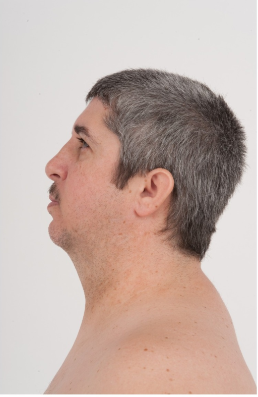 Profile view of Patient 1 at age 41 years.Dysmorphic features include a low posterior hairline, small (<−2 standard deviation), low-set ears and a high nasal bridge.