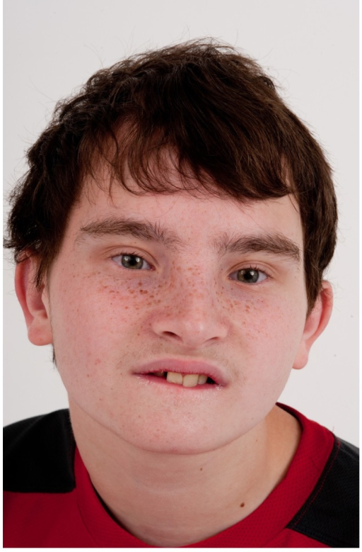 Frontal view of Patient 3 at age 15 years.He was originally diagnosed with Dubowitz syndrome and was determined to harbor a 3.89 Mb deletion on chromosome 17q24.2. Dysmorphic features include bilateral upslanted palpebral fissures with apparent telecanthus, broad nasal bridge and a bulbous nose.