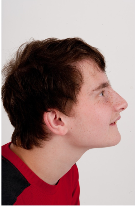 Profile view of Patient 3 at age 15 years.Dysmorphic features include low set ears.