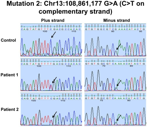 Sanger sequencing of LIG4 c.2440C>T variant in Patients 1 and 2.