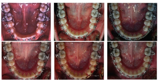 From left to right, progressive recovery of the mandibular canine.