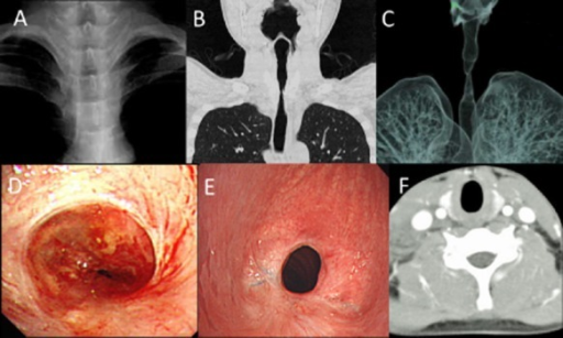 (A) Chest radiograph 90 days after injury showed upper tracheal stenosis. (B) Chest computed tomography (CT) on admission demonstrated a long segmental stenosis below the vocal cords. (C) The stenosis was visualized with a three-dimensional CT on admission showing a bottle neck pattern with a length of 27 mm. (D) Bronchoscopic findings of emergency tracheotomy showed a pinhole stenosis with adhesion and deformation of tracheal cartilage. (E) Airway patency was confirmed by bronchoscopy 6 months after surgery. (F) The initial CT taken at the previous hospital showed tracheal swelling at the upper area of the stenosis.
