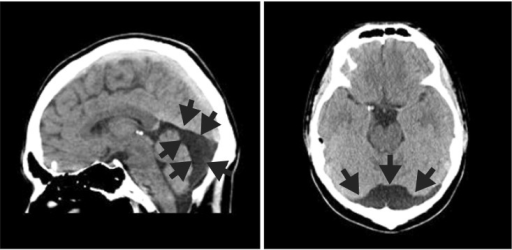 A computed tomography (CT) scan showing an arachnoid cyst at posterior cranial fossa.