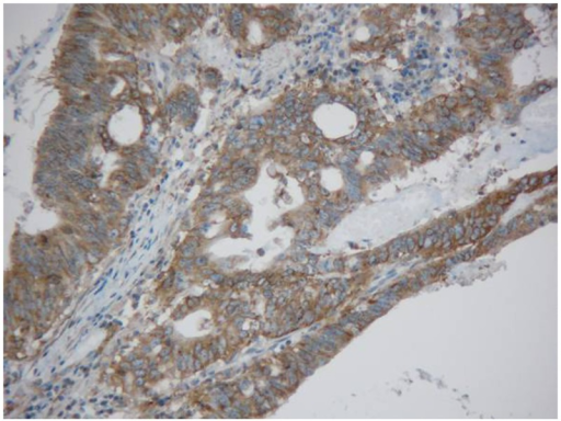 Immunohistochemical detection of Y-box binding protein-1 expression in rectal cancer tissue (200×).
