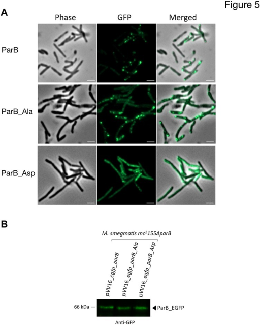 Localization of ParB and derivatives.(A) Subcellular localization of ParB-GFP in M. smegmatis mc2155ΔparB strain. Are shown Differential Intereference Contrast image (DIC), GFP fluorescence (GFP) and a merged image of DIC and GFP fluorescence (Merge). Localization of ParB isoforms are shown in three different panels: the upper panel shows wild-type ParB (ParB), the middle panel shows phosphoablative ParB (ParB_Ala) and the lower panel shows phosphomimetic ParB (ParB_Asp). Scalebar 2μm (B) Immunoblotting of ParB-GFP derivatives in M.smegmatis mc2155ΔparB complemented strains. Crude extracts of M. smegmatis mc2155ΔparB complemented with pVV16_egfp_parB, pVV16_egfp_parB_Ala or pVV16_egfp_parB_Asp were electrophoresed on SDS-PAGE gel, ParB-GFP derivatives were then detected by immoblotting using anti-GFP antibody according to the manufacturer's instructions (Santa Cruz) and revealed with secondary antibodies labeled with IRDye infrared dyes (Odyssey, LiCOR).