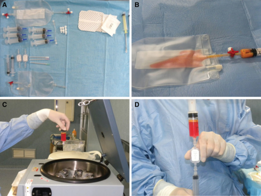 Fatstem procedure. A, Fatstem kit. B, Fat (80 ml) was inserted in the bag and subjected to automatic filtration. C, The fat harvested was inserted in a centrifuge at 1700 rpm per 10 minutes. D, The suspension obtained after centrifugation was further filtered through 0.2-μm filter, and 20 ml of the e-SVF suspension was obtained.