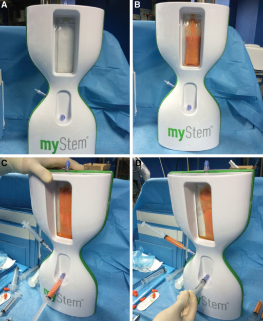 Mystem procedure. A, Mystem kit. B, Fat (80 ml) was added to Mystem and it was contained in the bag. C, After filtration and washed cycles, the residual fluid and oil was removed. D, 10 ml of the e-SVF suspension was extracted from the system (see Supplemental Fig. 1, Supplemental Digital Content 1, which shows a patient affected by breast hypoplasia treated with e-SVF fat graft obtained by Fatstem, http://links.lww.com/PRSGO/A99).