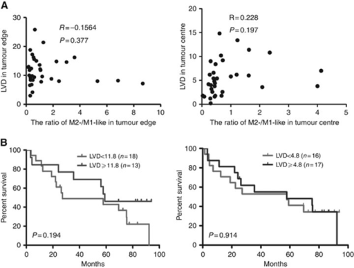Lymphatic vessel density (LVD) in tumour centre or at tumour edge is not associated with the ratio of M2/M1 macrophage or patient overall survival. (A) Correlation of LVD in tumour centre or at tumour edge with the ratio of M2/M1 macrophage (Pearson's test). (B) Kaplan–Meier overall survival curves of 31 EAC patients stratified by LVD in tumour centre and at tumour edge based on the median number.
