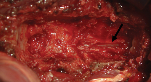 Intraoperative view of the corpectomy defect with the black arrow pointing to the site of division of the posterior longitudinal ligament.