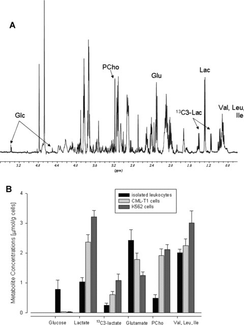 Metabolic profile of isolated human lymphocytes: (A) representative 1H‐NMR spectrum from 4 × 106 cells after PCA extraction; (B) comparison of absolute metabolite concentrations (μmol/g) in human leucocytes versus human chronic myelogenous leukaemia CMT‐L1 and K562 cell lines. The data on CML cells are adopted from our previous study [10] using a conventional Bruker 5‐mm TXI probe on 5 = 108 cells per extract. Abbreviations: Glc, glucose; Glu, glutamate; Lac, lactate; PCho, phosphocholine; Val, Leu, Ile, valine+leucine+isoleucine.