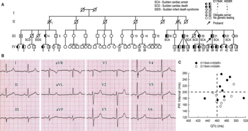 Clinical summary of the affected family. A, Pedigree of the family. B, Baseline ECG of the index patient (proband), who is positive for SCN5A‐E1784K and H558R. C, PR interval vs QTc among SCN5A‐E1784K carriers. Upper limit of normal values is indicated by dotted lines.