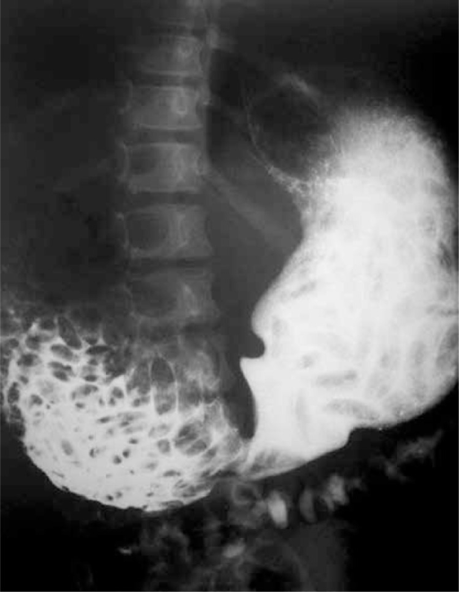 Barium meal shows dilated duodenum proximal to the web and multiple filling defects