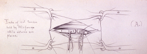 <p>Illustration depicting procedure for placing sutures in repair of a severed tendon.</p>