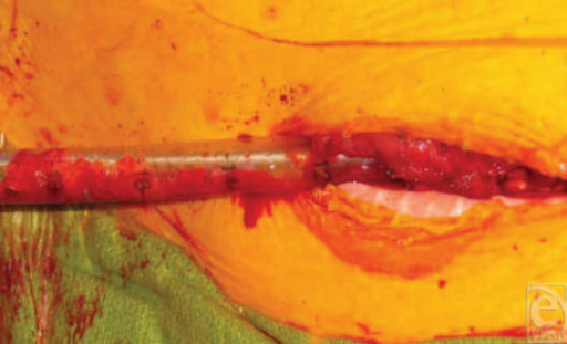 Intraoperative photograph of cancellous bone chips packed into the femur through a chest tube.