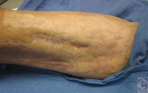 Healed medial thigh wound 3 years after the injury.