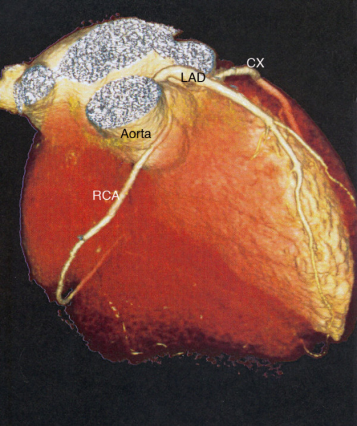 Multislice computed tomography of the heart demonstrates the coronary artery anomaly with a left-side origin of the right coronary artery. CX, circumflex coronary; LAD, left anterior descending artery; RCA, right coronary artery. The right ventricle has been digitally removed.