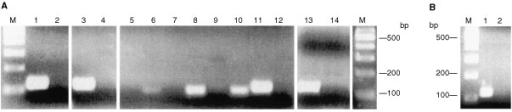 (A) MS–PCR of Na bisulphite-treated DNA from cell lines. Lanes 1, 2: PEO 1; lanes 2, 3: PEO 14; lanes 5, 6: A2780; lanes 7, 8: ONT 14; lanes 9, 10: OAW 42; lanes 11, 12: PEO 4; lanes 13, 14: MCF-7. Unmethylated reactions: lanes 1, 3, 5, 7, 9, 11 and 13. Methylated reactions: lanes 2, 4, 6, 8, 10, 12 and 14. M, 100 bp marker. (B) MS–PCR of Na bisulphite treated DNA from cell line PEA 1. Lane 1, unmethylated reaction; lane 2, methylated reaction; M, 100 bp ladder.