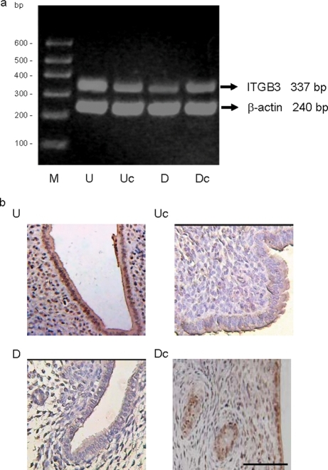 Effect of Meis1 expression manipulation on murine uterine integrin β3 (Itgb3) expression.(a) RT–PCR analysis of Itgb3 expression in murine endometria transfected with pcDNA4/MEIS1 (U), empty pcDNA4 (Uc), pTER/Meis1 siRNA (D) or control pTER constructs (Dc). A representative agarose EtBr picture is shown. No PCR product was observed in control samples that did not contain RT enzyme during RT synthesis or template DNA during PCR (not shown). RT–PCR was repeated three times, with similar results. Itgb3 expression was analyzed by densitometry and normalized to β-actin as described in Fig. 4. Average Itgb3/β-actin ratio in each group was: U 0.83 ± 0.17, Uc 0.50 ± 0.07, D 0.28 ± 0.06 and Dc 0.44 ± 0.04. There was a significant increase in Itgb3 mRNA in endometrium transfected with pcDNA4/MEIS1 compared with endometrium transfected with empty pcDNA4 DNA (P = 0.02). Levels of Itgb3 mRNA in endometrium transfected with pTER/Meis1 siRNA were significantly decreased when compared with endometrium transfected with control pTER (P = 0.006). (b) Immunohistochemistry of Itgb3 protein expression in the endometrium of mice transfected with either pcDNA4/MEIS1 or pTER/Meis1 siRNA plasmid. Shown are representative images of each group: uterine sections from mice transfected with pcDNA4/MEIS1 (U), with empty pcDNA4 vector (Uc), with pTER/Meis1 siRNA (D) or with non-targeting pTER vector (Dc). No staining was observed in a negative control without Itgb3 antibody as the primary antiserum (not shown). Scale bar = 100 µm. Statistical analysis of Itgb3 immunoreactivity was performed as described in the 'Materials and Methods' section. The data were analyzed using a two-tailed unpaired t-test. The immunoreactivity analysis was repeated three times, with similar results. The average Itgb3 immunoreactivity scores in each group were: U 6.4 ± 0.5, Uc 4.0 ± 0.8, D 2.4 ± 0.9 and Dc 4.8 ± 0.7. Uterine sections from pcDNA4/MEIS1-transfected mice showed significantly increased glandular and stromal Itgb3 expression compared with control mice treated with empty pcDNA4 vector (P = 0.0015). Uterine sections from pTER/Meis1 siRNA-transfected mice showed significantly reduced glandular and stromal Itgb3 expression compared with control mice treated with non-targeting pTER vector (P = 0.03)