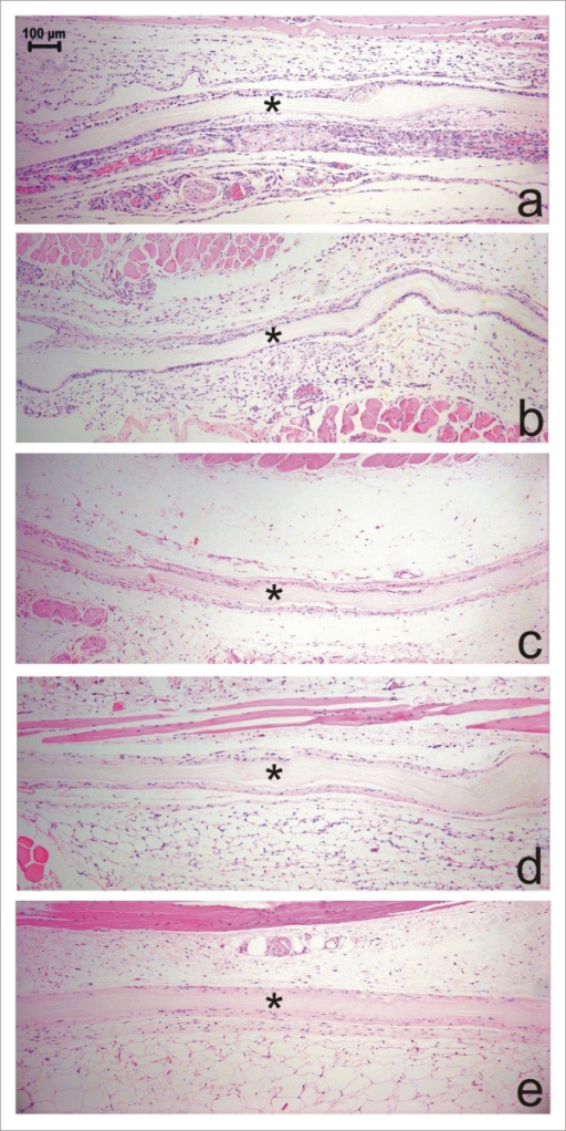 Histomorphology of a microbial cellulose membrane implanted subcutaneously in mice and surrounding tissue reaction 7(a), 15(b), 30(c), 60(d) and 90(e) days postoperatively. Observe the presence of the intact membrane (*) surrounded by immature granulation tissue and newly formed vessels and capillaries (a). At 15 days post-surgery, a reduction in inflammatory infiltrate, especially of lymphocytes, is observed (b). At 30 days postoperatively observe the collagen fibers commencing orientation parallel to the implant's surface (c). No inflammatory infiltrate is observed and the connective tissue surrounding the membrane is mature at 60 (d) and 90 (e) days post-surgery. (HE, Obj. ×10).
