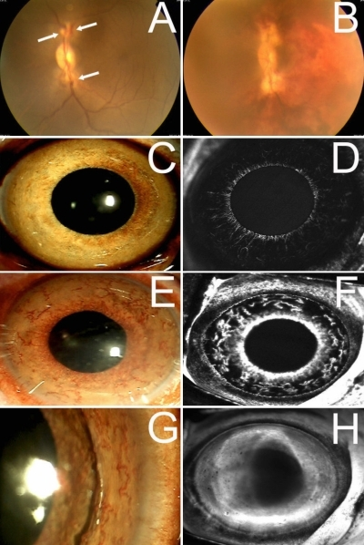 Color photograph and fluorescein angiography of the iris of monkey number 7 which underwent fake intravitreal injection. Laser irradiation was performed to occlude all major branched retinal veins of the monkey's eyes (A). Obvious venous dilation and corresponding retinal hemorrhage can be observed from 2 days after laser coagulation (B); at 7 days after laser coagulation, mild iris neovascularization can be observed at the margin of pupil (C) with slight leakage of fluorescein (D); and at 14 days after laser coagulation, severe and tortuous iris neovascularization can be observed across the whole iris (E) with strong leakage of fluorescein (F) which lasted to 23 days after laser coagulation (G and H).