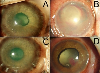 Color photograph iris of monkeys at 50 days after laser coagulation. In monkey number 3, un-regressed new blood vessels still can be observed throughout the whole iris (A). In monkey number 4, secondary glaucoma occurred (severe corneal epithelium edema was present; B). In monkey number 5, slight ectropion uvea was found (C). In monkey number 6, new thin iris vessels can be observed through the whole iris together with an irregular and fixed pupil. Ectropion uveae were apparently observed (D).