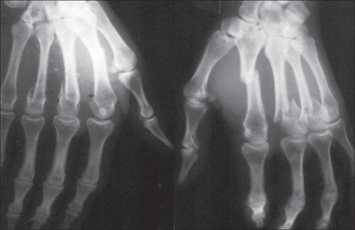 Preoperative Radiographs Showing Transverse Fracture Of Open I