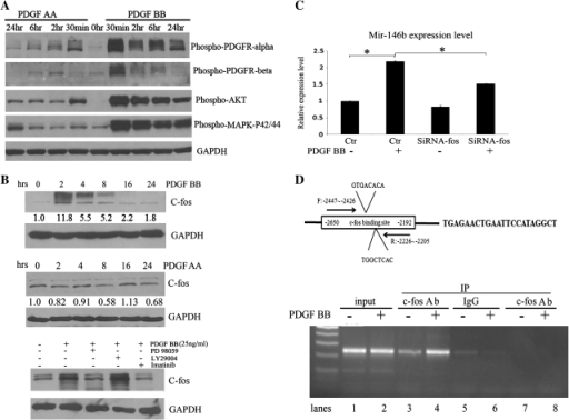 Mechanism of miR-146b regulation by PDGF BB. (A) Phosphorylation of PDGFRα and β, Akt and MAPKp42/p44 was measured by western blotting in C272hTert/E7 cells stimulated with PDGF-AA (25 ng/ml) or PDGF-BB (25 ng/ml) for 30 min to 24 h. (B) Western blotting for c-Fos in C272/hTert/E7 cells treated with PDGF-BB for 2–24 h (upper panel). Western blotting for c-Fos in C272/hTert/E7 cells treated with PDGF-AA for 2–24 h (middle panel). Western blotting quantifies c-fos in C272hTert/E7 cells stimulated with PDGF-BB in the presence or not of PD98059 and LY294002 inhibitors (lower panel). (C) C272Htert/E7 cells were transfected with c-fos targeted siRNA or scrambled siRNA (control) and treated with PDGF BB. MiR-146b was quantified by qPCR (P = 0.007). Statistical significance is marked by asterisks. (D) Schematic representation of the c-fos binding site at position −2300 upstream of the miR-146b and the position of primers chosen for amplification in the ChIP assay. ChIP assay tests binding of c-Fos to the miR-146b promoter region after PDGF-BB stimulation. A 242-bp PCR product was detected by gel agarose electrophoresis from chromatin immunoprecipitated with an antibody against c-fos (lanes 3 and 4) using primers flanking the c-fos binding region of the miR-146b promoter (−2447 to −2205 bp). Positive controls are amplicons from input chromatin (lanes 1 and 2). Negative controls consist of chromatin immunoprecipitated with non-specific IgG and amplified with primers specific to the miR-146b promoter (lanes 5 and 6) and chromatin immunoprecipitated with c-fos antibody and amplified with primers away from the predicted c-fos binding site (lanes 7 and 8).