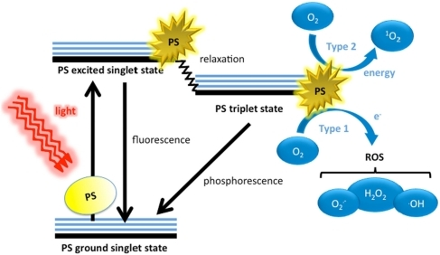 Schematic illustration of photodynamic therapy includin | Open-i